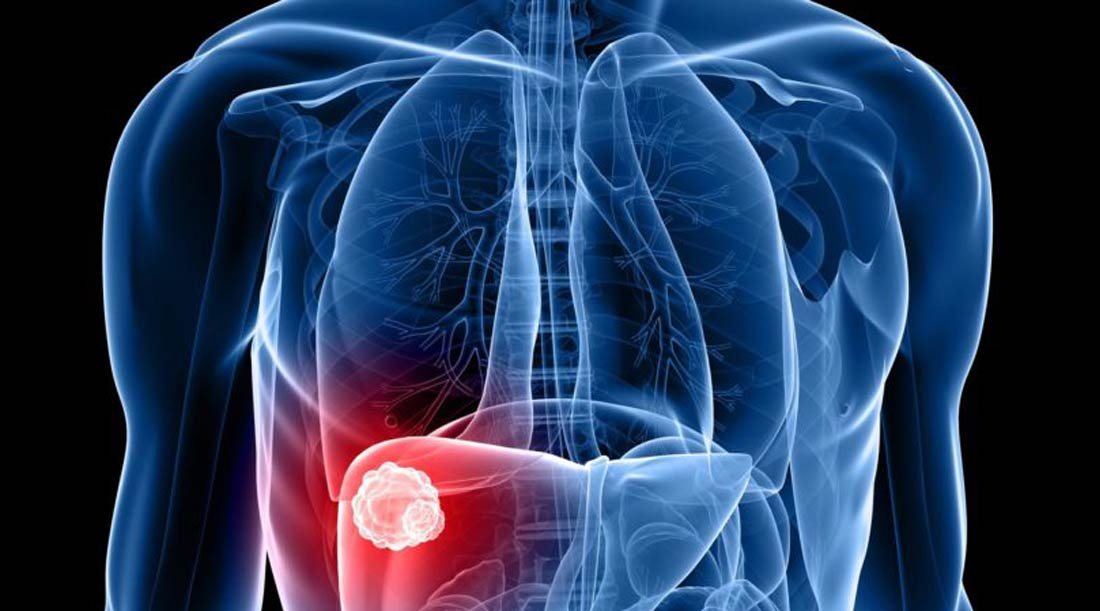Cirurgia de Fígado