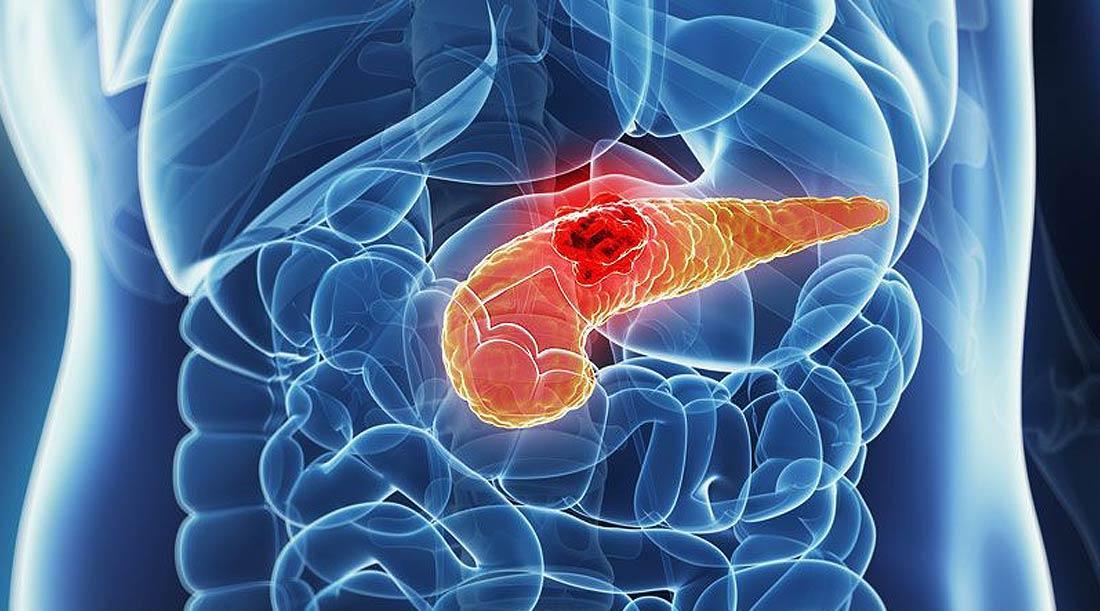 Cirurgia de Pâncreas