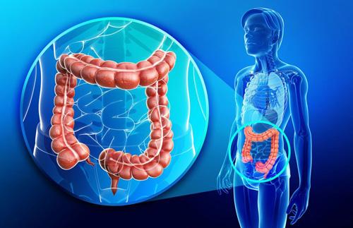 Dr. Sergio Bertolace - Procedimentos - Tumores do Intestino Grosso